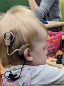Can you help find Gloucester toddler's vital cochlear implant? Image